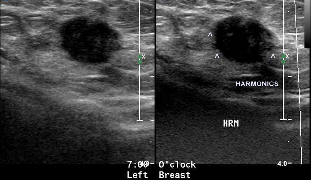 What does breast cancer look like on a sonogram