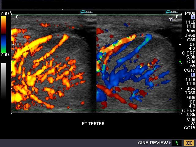 orchitis ultrasound. ultrasound images show inhomogenous echotexture of the right testes with hypoechoic areas seen in lower part. orchitis o