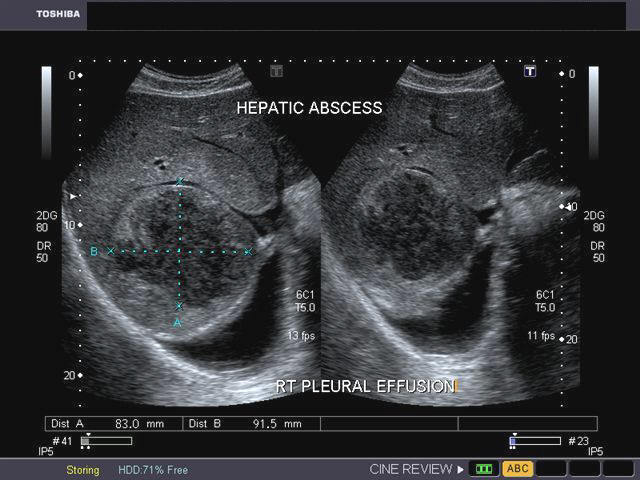 hepatic abscess Hepatic abscess (ha) remains a serious and often difficult to diagnose problem  has can be divided into three main categories based on the.