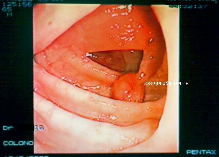 Analogy Nasal Polyps Treatment In Ayurveda Kerala Between
