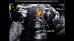 double-aortic-arch