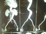 aortic-aneurysm-CT-3D
