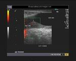 inguinal testes-Lt-comm- hydrocele