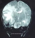 intracerebral-hematoma