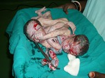 Snapshot of the conjoined twins after delivery
