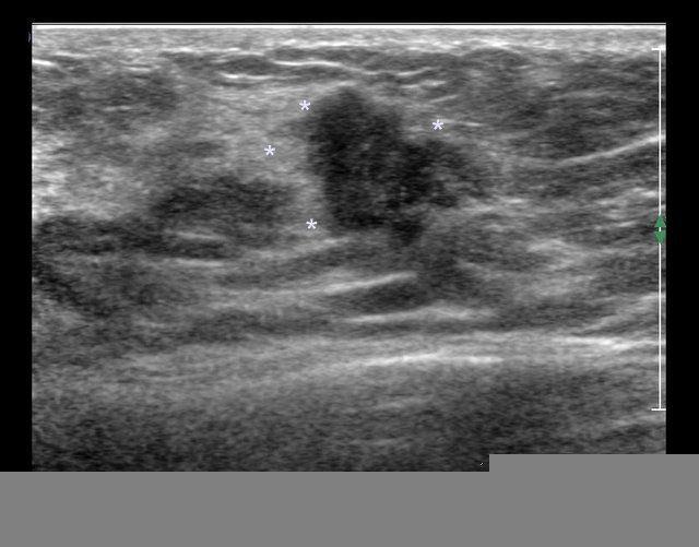 Pleural effusion and breast cancer