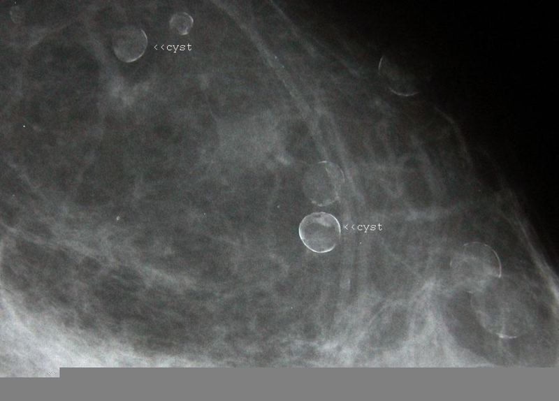 A Gallery Of High Resolution Ultrasound Color Doppler 3d