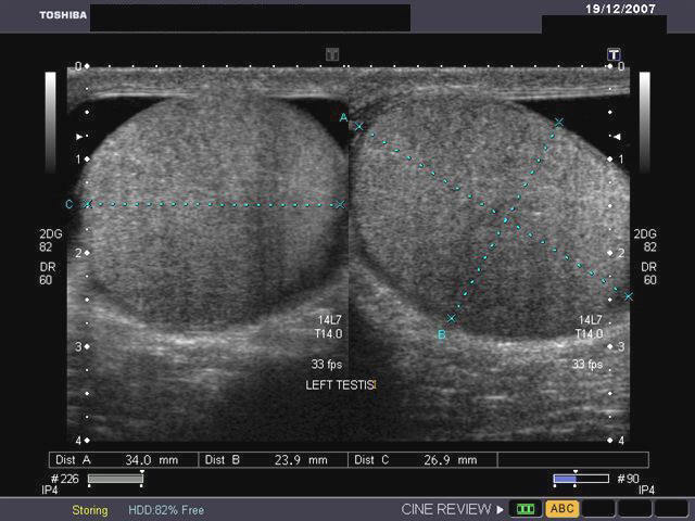 A Gallery of High-Resolution, Ultrasound, Color Doppler & 3D Images ...