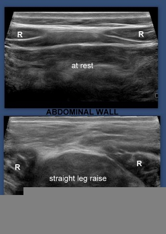 A Gallery Of High Resolution Ultrasound Color Doppler