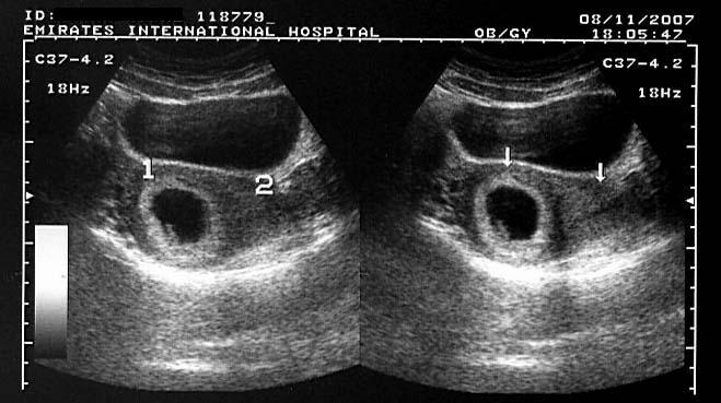 Ultrasound Images of Early Pregnancy
