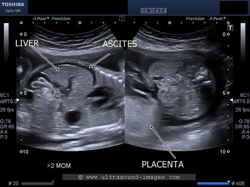 Ultrasound Images of Fetal General