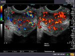 Ultrasound and Color Doppler imaging