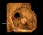 3D ultrasound image of calculus in renal pelvis