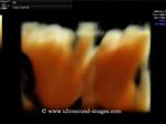 3D ultrasound images of fetal choroid plexus