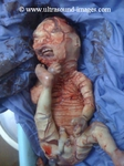 icthyosis in fetus